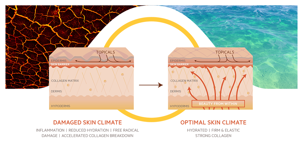 Diagram showing Damaged Skin Climate - Inflammation, Reduced Hydration, Free Radical Damage, Accelerated Collagen Breakdown. Optimal Skin Climate - Hydrated, Firm and Elastic, Strong Collagen